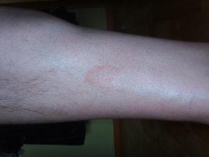 Красное пятно на икре ноги
