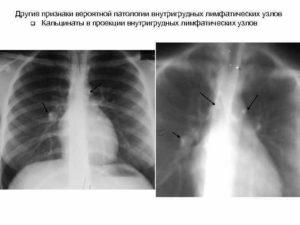 Кальцинаты лимфоузла лёгкого у ребенка