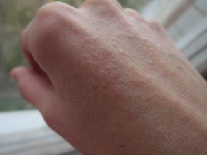 Болезненная сыпь на руках