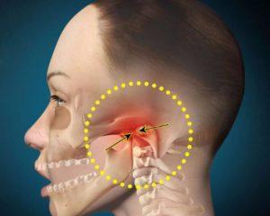 Болит челюсть снизу и отдает в висок с левой стороны