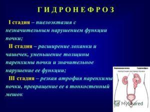 Пиелоэктазия у ребёнка
