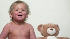 Мастоцитоз у ребёнка в 1 год
