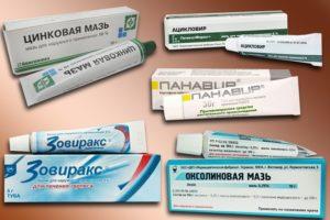 Мази для лечения генитального герпеса при лечении сифилиса