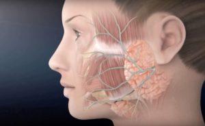Имплантация при неврите тройничного нерва
