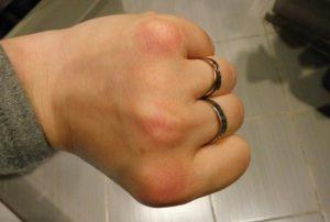 Красные пятна на коже (внешняя сторона ладони)