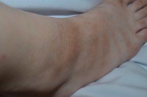 Красные пятна в складках на ножках и других частях тела