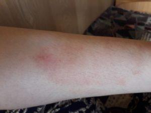 Красная сыпь на ноге