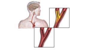 Боль в сонной артерии слева