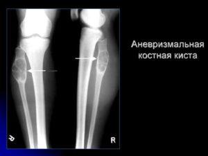 Киста м/берцовой кости