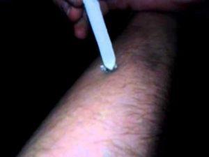 Круглая рана как ожог от сигареты
