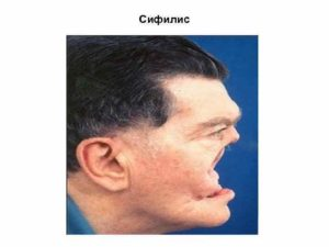 Болит нос - поздний Сифилис?