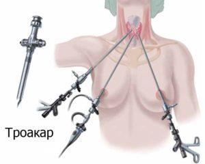 Как срочно нужна операция при узловом зобе?
