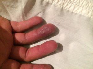 Красные пятна на пальцах рук. Похожи на мозоли