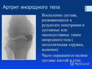 Инородное тело в колене