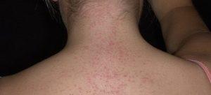 Мелкая сыпь на шее