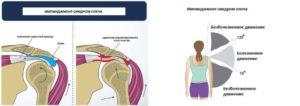Боль в плечевом суставе, синдром прижатия надостной мышцы