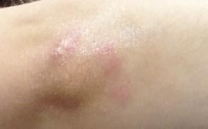 Красные шелушащиеся пятна на локтях и коленях?