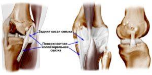Частичный внутренний надрыв сухожилия