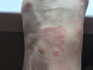 Красное пятно на ноге увеличивается в размерах