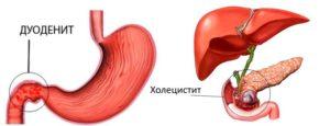 Хронический гастродуоденит и холецистит, обострение