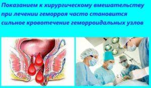 Кровь после операции на геморрой