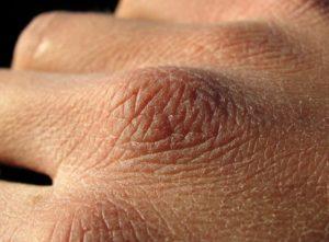 Хрупкая кожа на руках