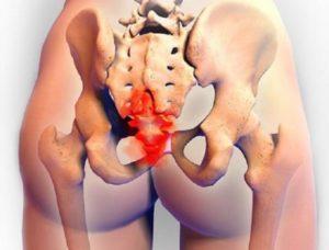 Болит спина над попой