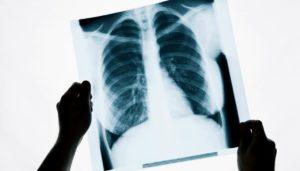 Большое количество рентгенов