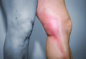 Боль в ноге. Горячая вена