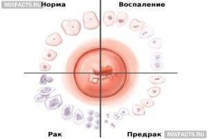 Лечение инфекции на фоне эрозии шейки матки