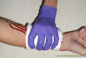 Кровотечение прорыва на беларе