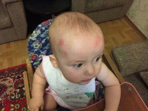 Красные пятна на голове и облысение ребёнка 2 года