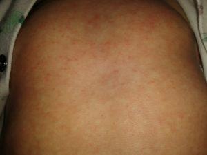 Мелкая сыпь на спине у двух детей и матери