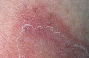 Болячка вокруг которой мокнет и облезает кожа