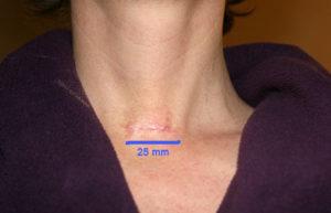 Массаж лица после удаления щитовидной железы