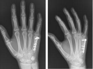 Как разрабатывать палец после спицы