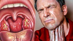 Боль в горле по утрам (5 месяцев после удаления миндалин)