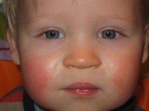 Красные шершавые щеки