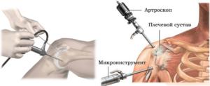 Лечение после артроскопии правого плечевого сустава