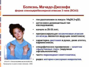 Болезнь мачадо джозефа 3й тип