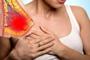 Мастопатия, сильная боль в груди