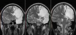 Ликворная киста головного мозга