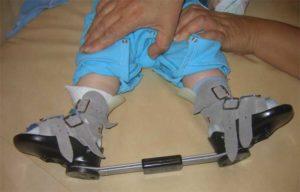 Как уменьшить спастику на ногах у шейника