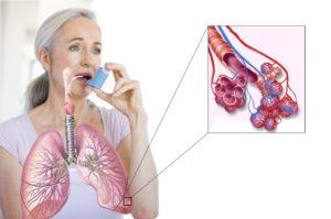 Бронхиальная астма и бронхит