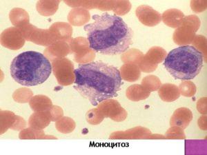 Лейкопения и моноцитоз после лечения описторхоза