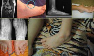 Киста мягких тканей голени у ребенка