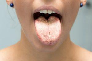 Хронический гастрит и белый налёт на языке
