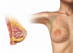 Мастопатия и увеличенный лимфоузел