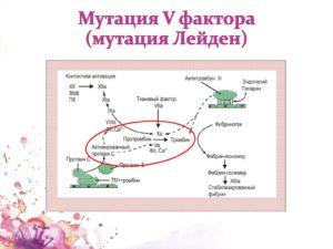 Планирование беременности с мутацией Лейдена гетерозигота