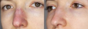 Капиллярная точка на носу
